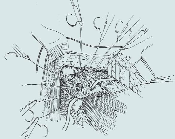 Obšití okrajů transsekované prostaty [35].