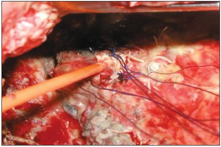 Peroperační snímek nasondované bronchopleurální píštěte u nemocného po pneumonektomii
