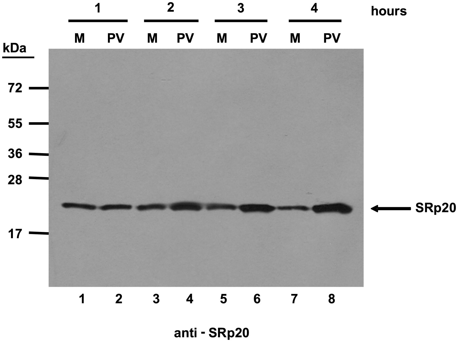 SRp20 is present in cytoplasmic extracts from both mock- or poliovirus-infected cells.