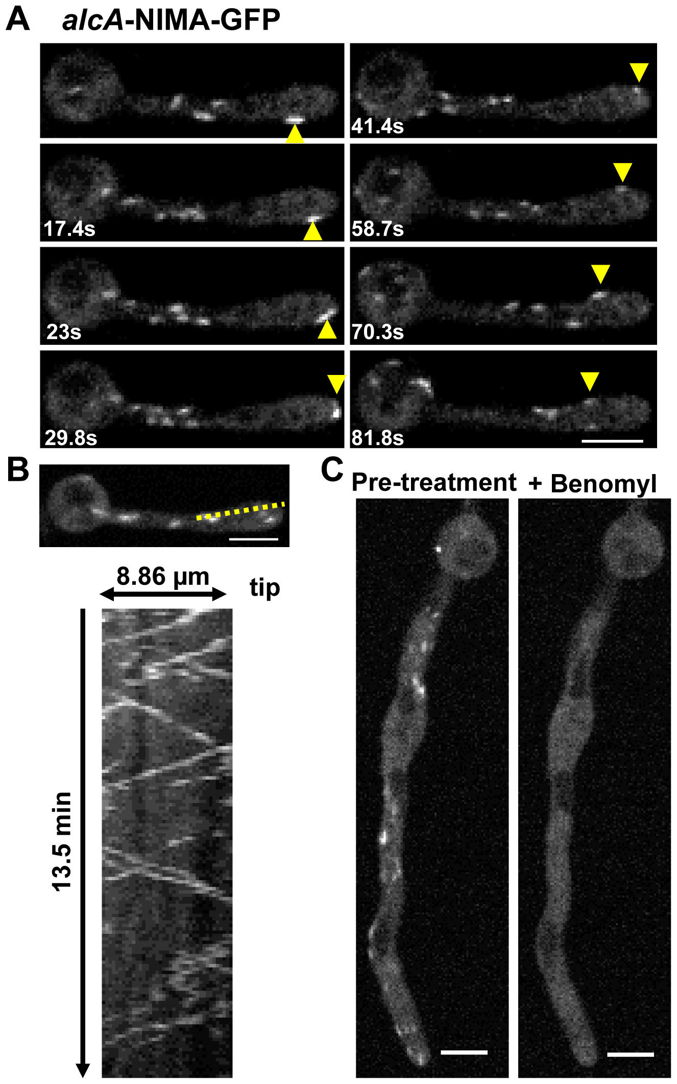 Ectopic NIMA-GFP displays a distinctive microtubule-dependent localization.
