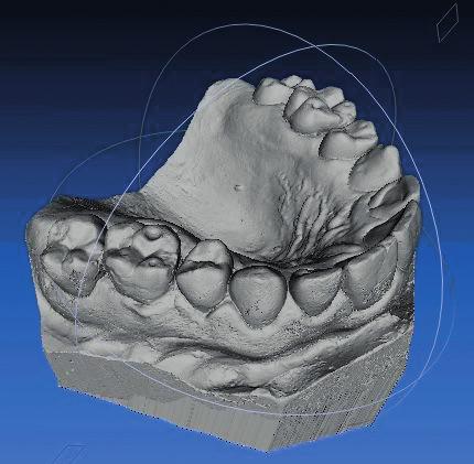 Digitální model získaný skenováním sádrového studijního modelu pacienta