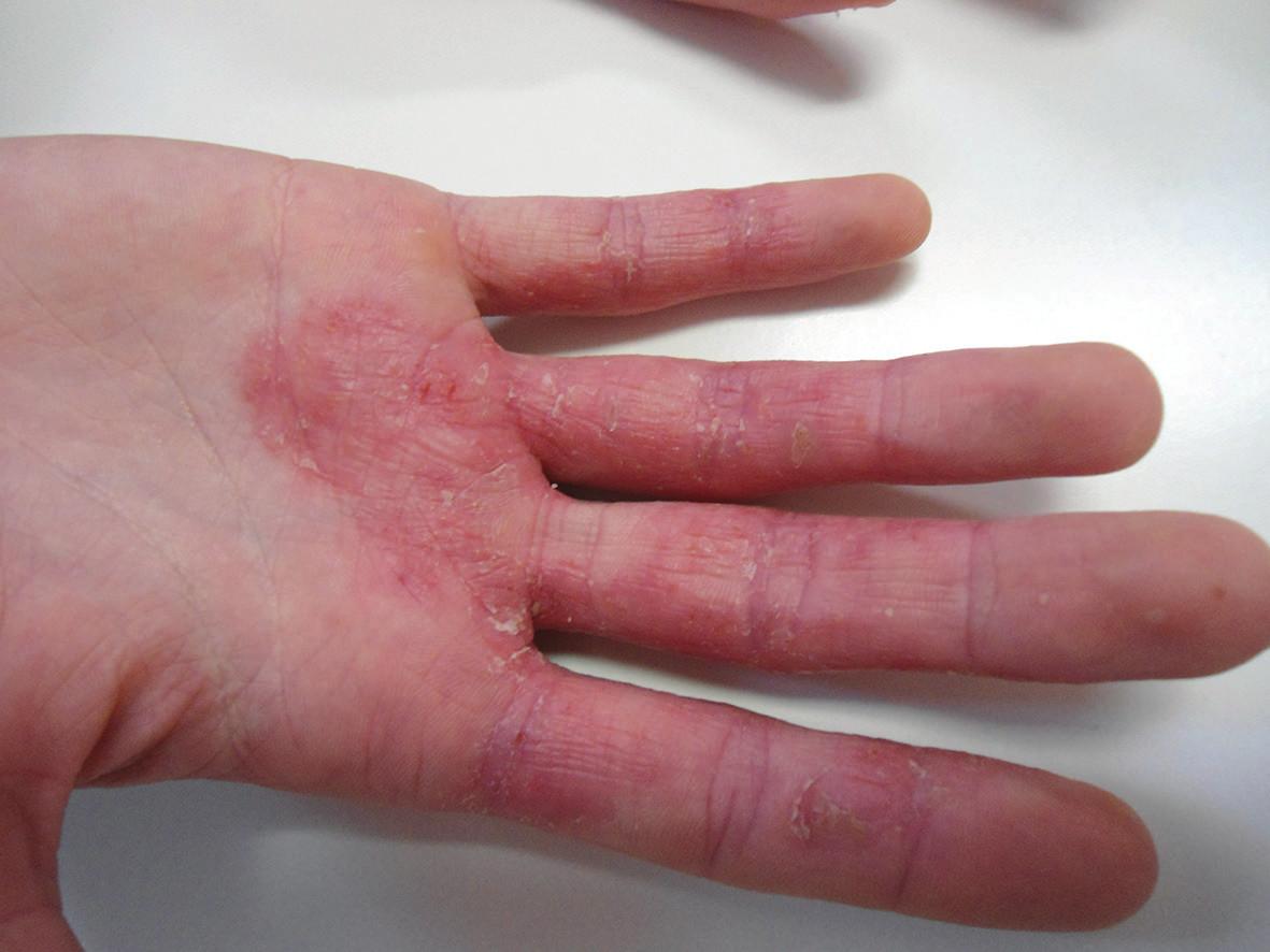Kontaktní proteinová dermatitida vyvolaná senzibilizací na rybí maso
