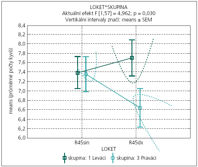 Graf 2b. Porovnání průměrného počtu kyvů (z 10 opakování pokusu) při současném pádu předloktí z extenze vleže podle lokality (sin-dx) a laterální skupiny (Praváci-Leváci).  Hyperboly poukazují na statisticky významně rozlišitelné průměry u Praváků (na rozdíl od Leváků) na hl. spolehlivosti 95 %. Efekt křížové dominance HK (testovaný interakčním efektem 'sin-dx' a laterální skupiny) je statisticky významný na hladině spolehlivosti 95% (F[1,54] = 5,207; p = 0,026).