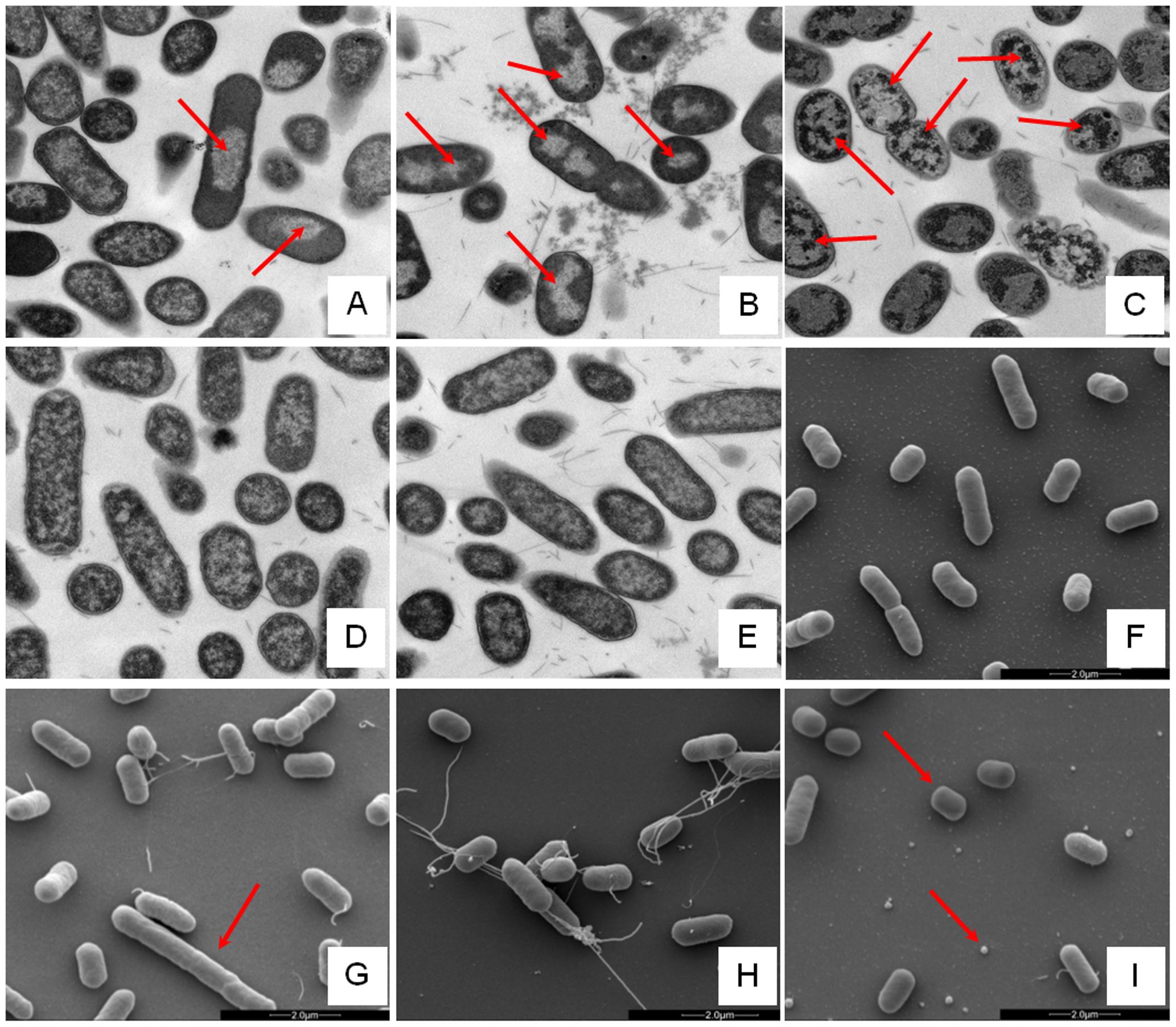 Electron microscopic analysis of <i>E. coli</i> response to AMP challenge.