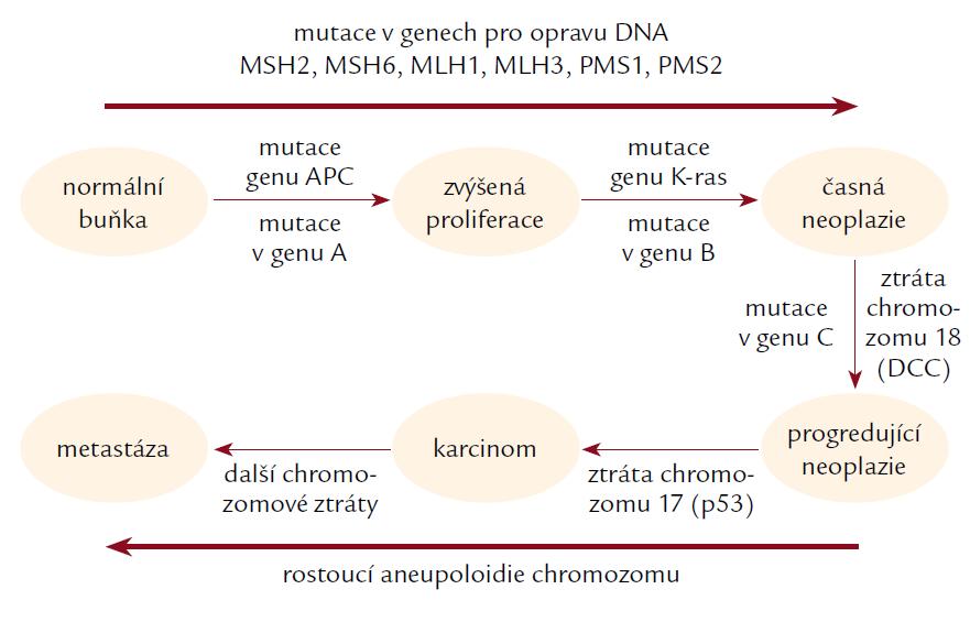 Schéma jednotlivých stadií vývoje zhoubného nádoru.