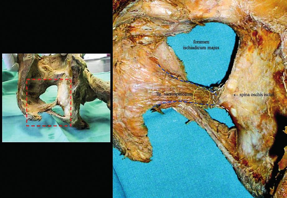 Demonstrace klíčové kotvicí struktury využívané u obou typů výkonů – sakrospinózní ligamentum.