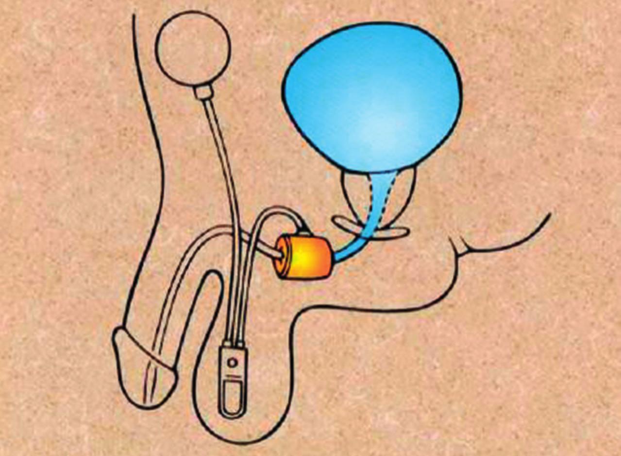Schéma složení a umístění umělého svěrače uretry (manžeta na bulbární uretře, pumpový systém ve skrotu a rezervoár tekutiny svěračového systému v podbřišku)