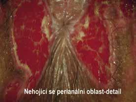 Široce přisedlý zánětlivý polyp – detail