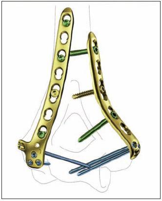 Anatomicky tvarované zamčené dlahy pro distální humerus