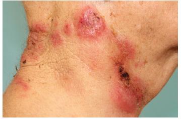Palpačně bolestivé infiltráty na kůži krku, některé anulárního uspořádání