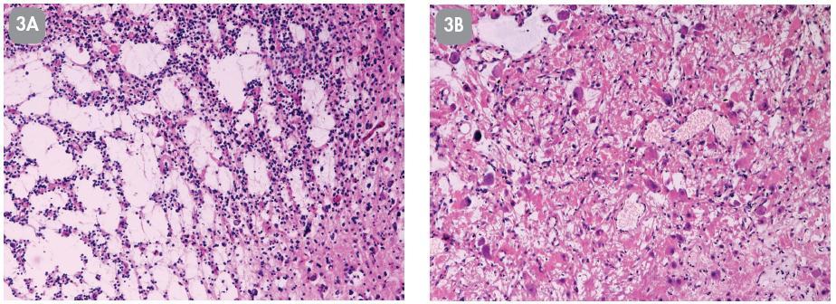 Případ č. 3: 48-letá žena s mnohaletou anamnézou farmakorezistentní epilepsie, s tumorózní lézí o velikosti 2,6x2x1,6 cm vlevo parietálně. Biopsie resekované léze. HE 100x (3A, 3B).