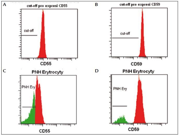 Fluorescenční standardy slouží k nastavení cut-off, podle kterého odlišujeme normální erytrocyty (oblast nad prahem) od PNH erytrocytů (oblast pod prahem).