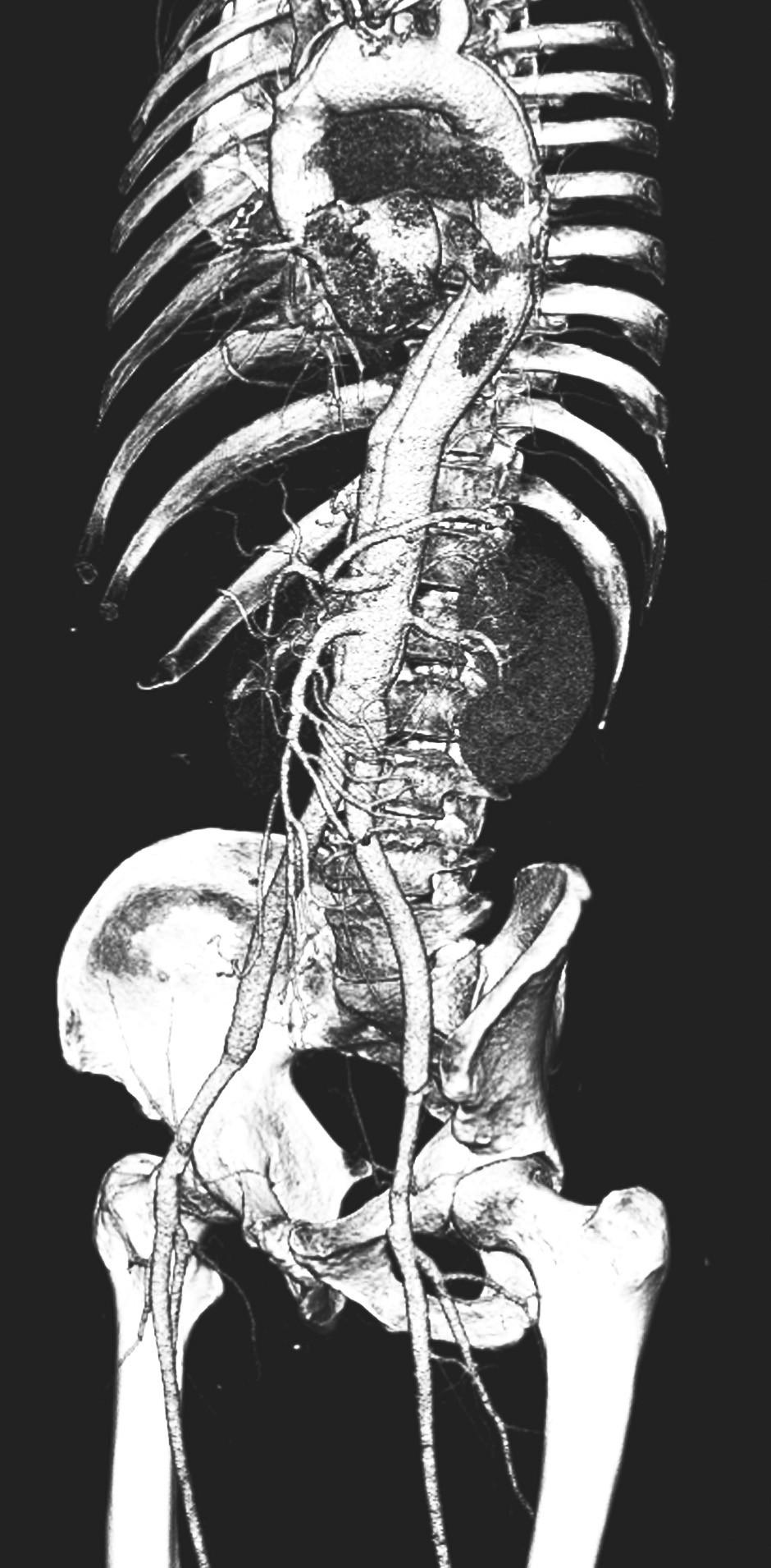 CTAkontrola rok po resekci subrenální aorty technikou aortální fenestrace s ABI rekonstrukcí Pic. 17. A CTA check up a year after the resection of the subrenal aorta using the technique of aortic fenestration with ABI reconstruction