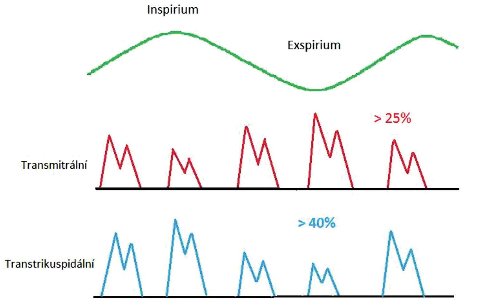 Významné respirační kolísání průtoků na atrioventrikulárních ústích při spontánní ventilaci