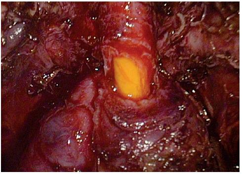 Odstřižení uretry Fig. 6. The cut of the urethra