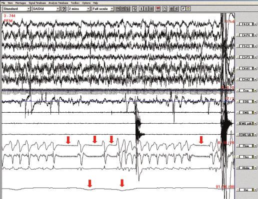 Polysomnografický záznam (2minutový úsek), pacientka