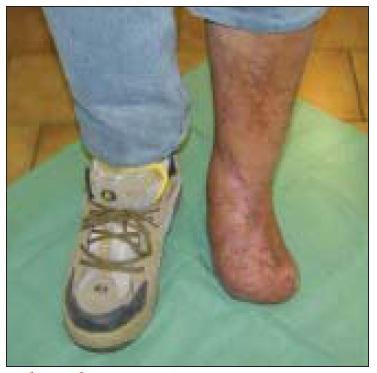 Obr. 7b. Tentýž pacient, stav  3 měsíce po provedeném nonreverzním popliteo-ADP bypassu.