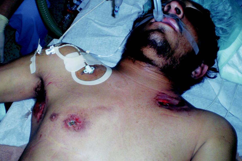 Vstřel a výstřel na přední stěně hrudníku a vstřel v pravé axile Fig. 2. Gunshots of the anterior chest wall and in the right axilla