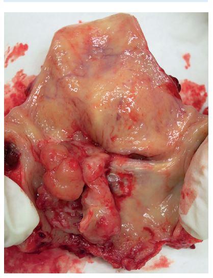 Zadní pohled na resekát laryngu s tumorem levého hlasového vazu.