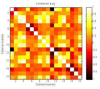 Fig. 1: Correlation map (matrix of correlation coefficients) from ictal zone.