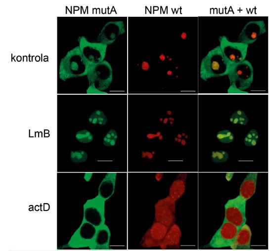 Změny lokalizace mutovaného (zelená) a nemutovaného (červená) nukleofosminu v HEK293T buňkách po působení leptomycinu B (LmB) a aktinomycinu D (actD)