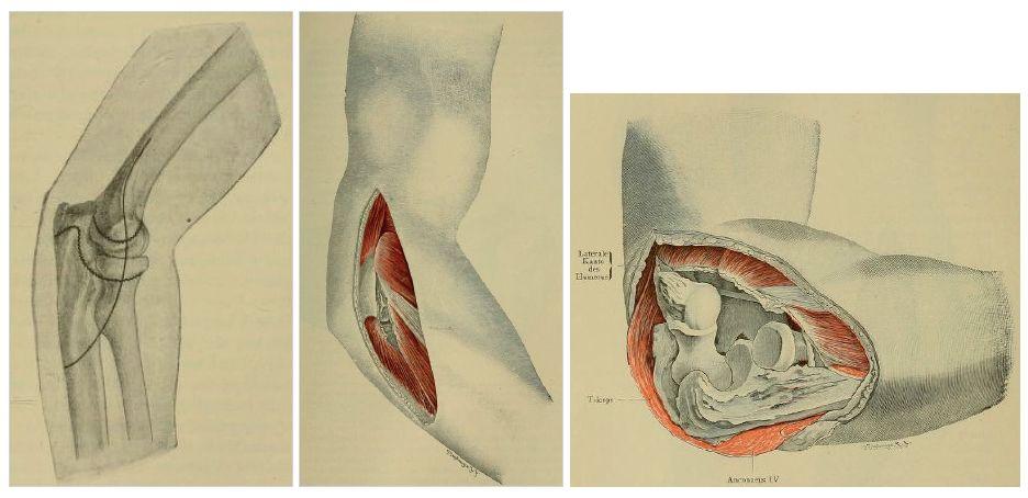 """Originální Kocherův přístup z roku 1907: a – kožní řez ve tvaru """"J""""; b – preparace v intervalu mezi m. extensor carpi ulnaris a m. anconeus; c – uvolnění všech struktur upínajících se na laterání epikondyl humeru a široké rozevření kloubu. Fig. 1: Original Kocher approach of 1907: a – J-shaped skin incision; b – dissection in the interval between the extensor carpi ulnaris and the anconeus; c – release of all structures attached to the lateral epicondyle of the humerus and opening the joint wide."""