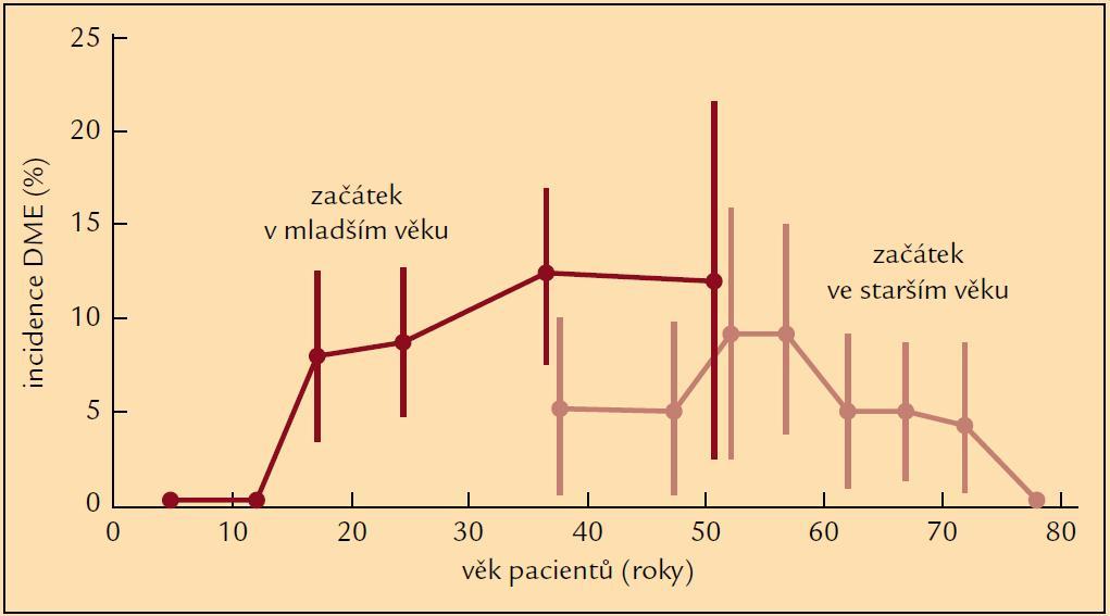 Incidence DME v závislosti na typu DM a věku pacienta (podle [8]).