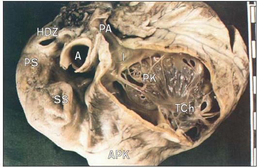 Srdce s Ebsteinovou anomálií trikuspidální chlopně v pohledu z odtokové části pravé komory. Chlopeň je fenestrovanou záclonou poutanou takovým způsobem, že odděluje přítokovou a odtokovou část pravé komory. Dutina přítokové části (atrializovaná pravá komora) je za chlopní.