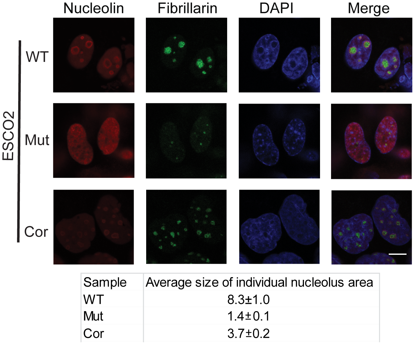 Nucleolar organization was severely disrupted in the immortalized RBS cells.