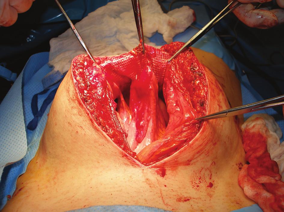 Peroperační nález pacientky po částečném odpreparování sítě po IPOM plastice, do sítě byl vrostlý konvolut kliček spolu s ileotransverzoanastomózou