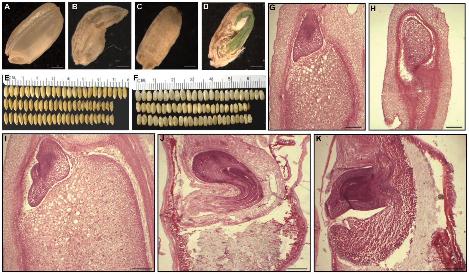 Phenotypes of <i>OsFIE2</i>-RNAi seeds.