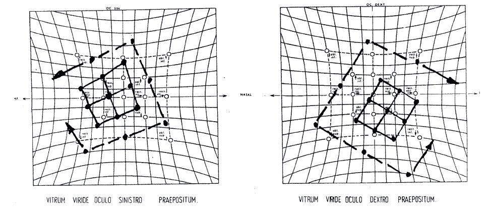 Osmadvacetiletý pacient s excesem divergence u strabismu sursoabduktorius: předoperační motilita bulbů ve verzích (nahoře), Hessovo plátno vylučující inkomitantní stav (dole)