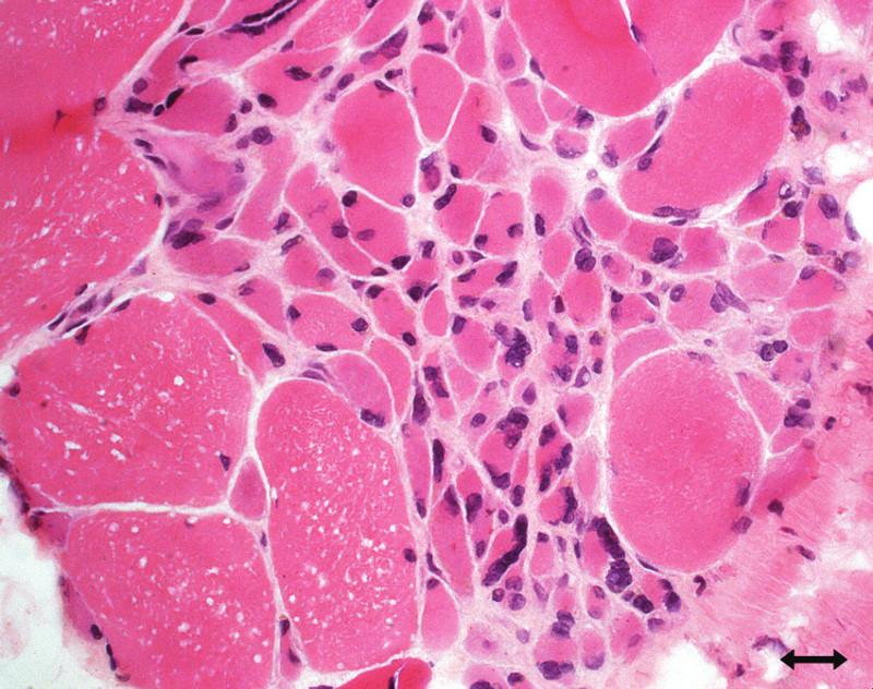 Atrofická, polygonální, částečně regenerující svalová vlákna ve skupinách svědčící pro denervaci (hematoxylin-eozin).