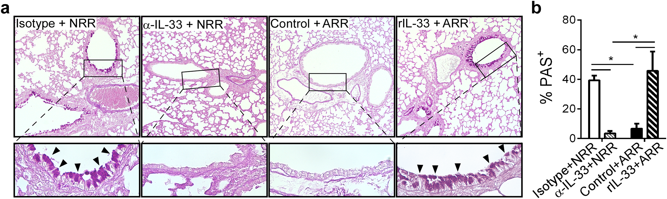 IL-33 levels during primary RSV infection determine disease severity after reinfection.