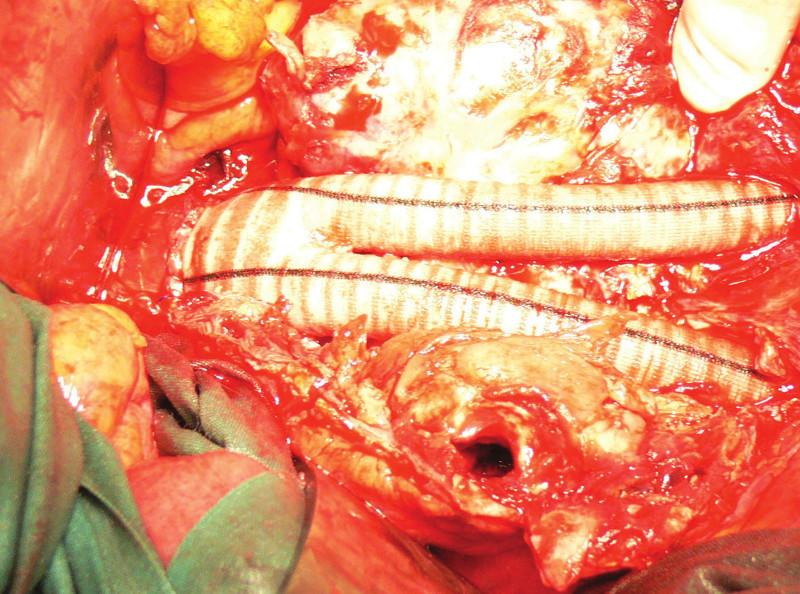 Aortobiilická náhrada, v nástěnném trombu patrný kanál po endoleaku Fig. 12: Aortobiiliac replacement, in wall thrombus visible channel for endoleak