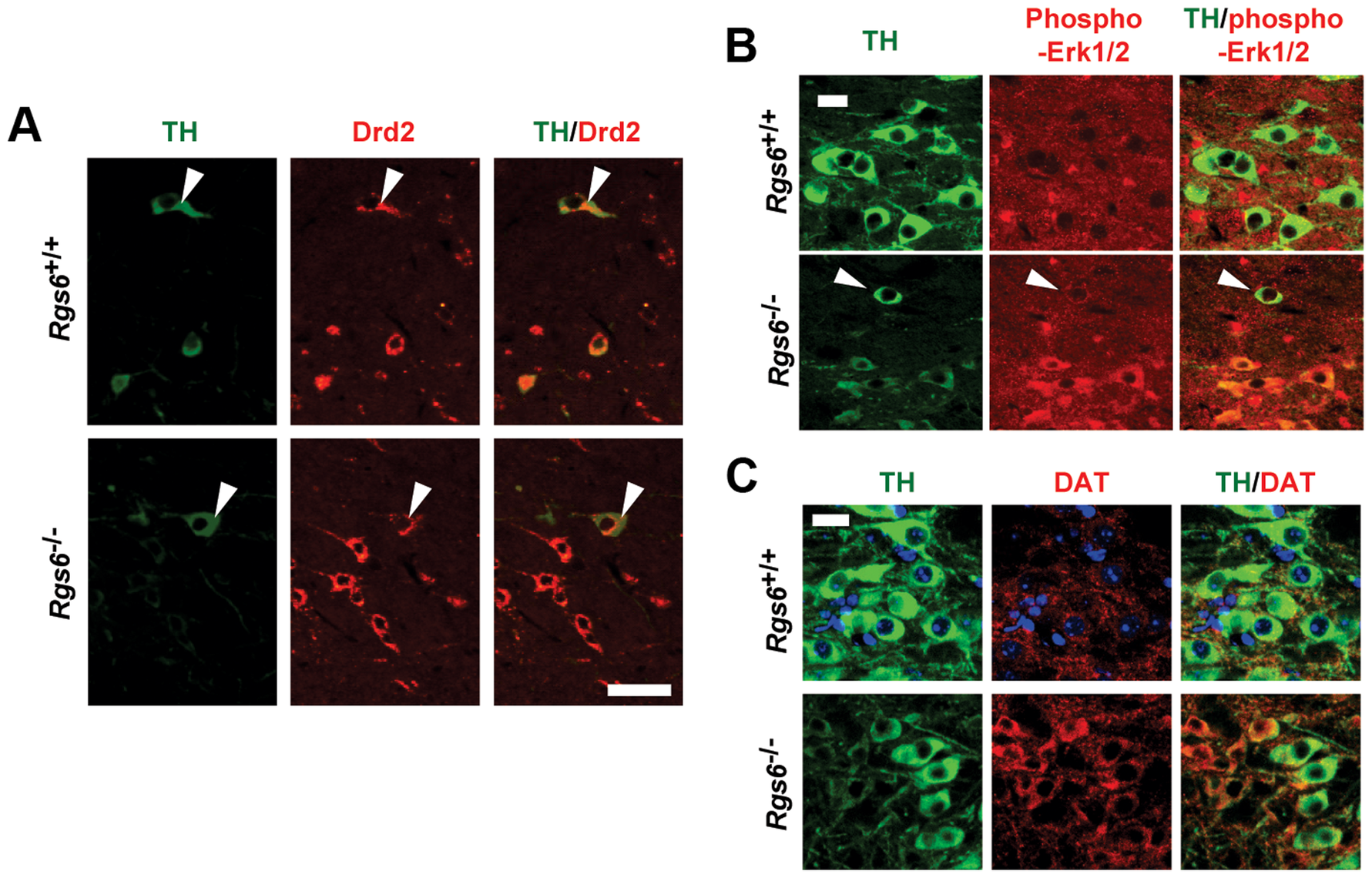 Drd2-related changes of gene expression in degenerating neurons of vSNc.