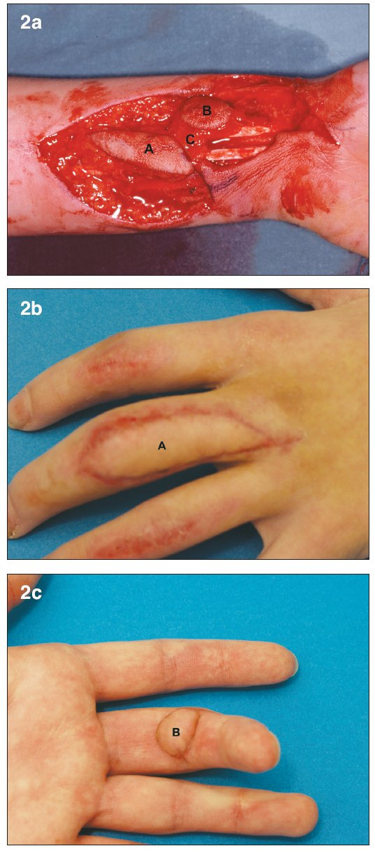 a. Bilobed arterialized venous flap. Flap harvested on the distal volar forearm (7) A– Dorsal skin paddle. B – Volar skin paddle. C – subcutaneous bridge between the two skin paddles b. Early post-operative result at 1 month. A – Dorsal skin paddle c. Early post-operative result at 1 month. B – Volar skin paddl