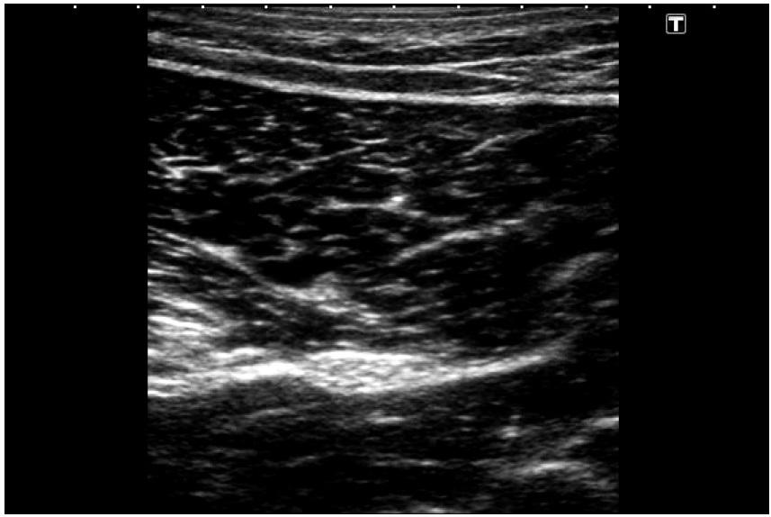 Obdélníkový tvar zorného pole při užití lineární sondy s pracovní frekvencí 10 MHz Hyperechogenní oploštělý obraz sedacího nervu v polovině stehna s typickým obrazem svalové tkáně v okolí.