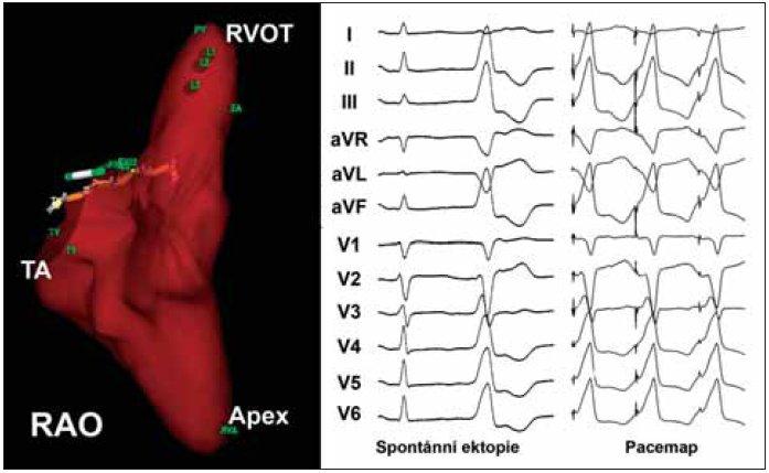Charakteristická morfologie ektopického komplexu QRS u pacientky s běhy repetitivní idiopatické KT z výtokového traktu pravé komory (prostřední část panelu). Za povšimnutí stojí morfologie komplexů QRS tvaru blokády levého raménka se sklonem osy doprava a přechodovou zónou v hrudních svodech ve V<sub>3</sub>. Pravá část panelu dokumentuje výsledek pacemappingu v místě nejčasnější aktivace (tj. poměrně přesné napodobení morfologie komplexů QRS jako při spontánní ektopii). V levé části panelu je 3rozměrná mapa pravé komory sestrojená pomocí systému NAVx (pravá šikmá projekce). Místa úspěšné ablace jsou vyznačena ve výtokovém traktu (RVOT) v podobě 3 hnědých bodů.