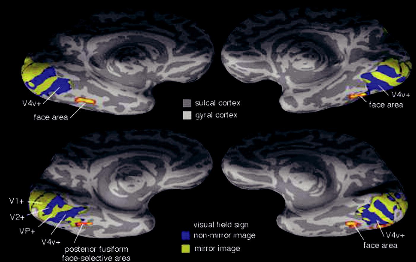 Laterální a ventrální pohled na pravou a levou hemisféru Sulcal cortex kůra rýh mezi závity Gyral cortex kůra závitů Face area tvářová oblast Posterior fusiform … oblast zadní části g. fusiformis aktivovaná při prohlížení tváří