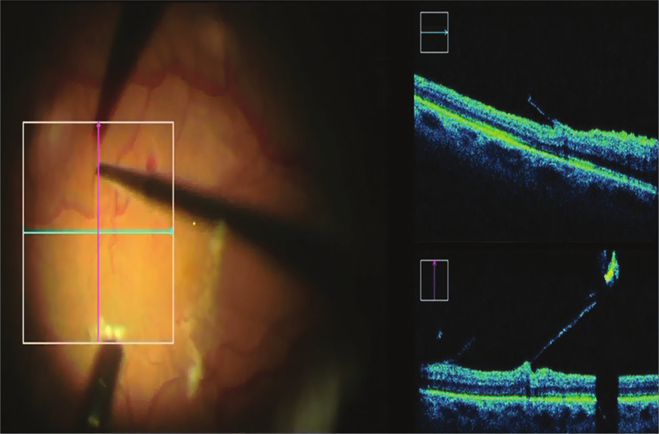 iOCT v době peelingu ERM, chirurg přímo sleduje trakční síly, které indukuje mikropinzetou a omezuje riziko vzniku centrálního defektu neuroretiny při pevné adherenci membrány