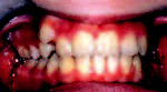 Obr. 1b.  Intraorální pohled před zahájením léčby.