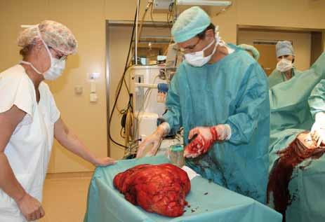 Fotografie tumoru na operačním sále.