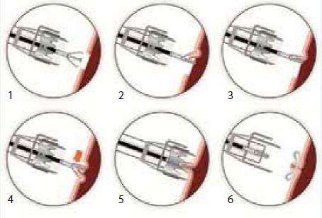 Technika nasazení OVESCO klipu (zdroj: www.ovesco.com)
