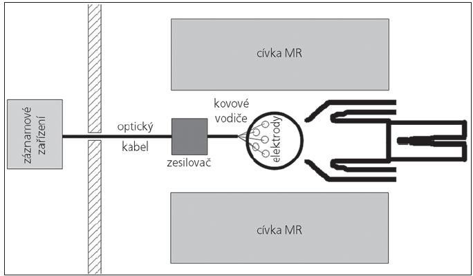 EEG-fMR systém.