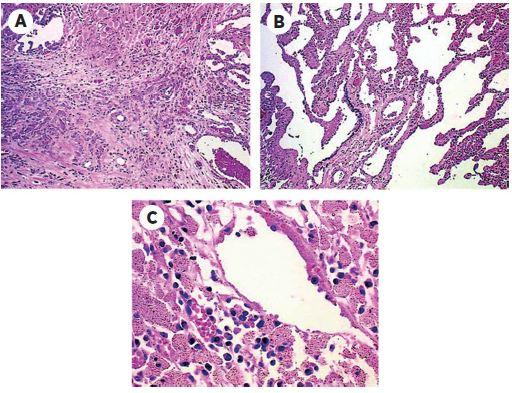 Husté fibrotické tkanivo s alveolárnymi makrofágmi V makrofágoch sú zapúzdrené hliníkové častice zo zváračských dymov. A – hustá fibrotická plocha pľúc s mnohými makrofágmi obsahujúcimi hliník B a C – pľúcny parenchým a peribronchiolarne a intersticiálne makrofágy obsahujúce hliník. (Originálne zväčšenie 10x.) [Prevzaté: James D. Byrne and John A. Baugh: The significance of nanoparticles in particle-induced pulmonary fibrosis. Mcgill J. Med., 2008, 11, 1, s. 43–50.]