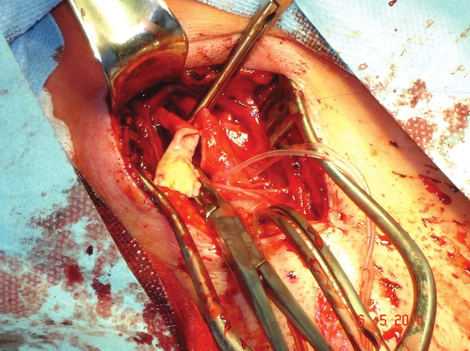 ACI po endarterektomii a parciální resekci Fig. 2: ICA after endarterectomy and partial resection