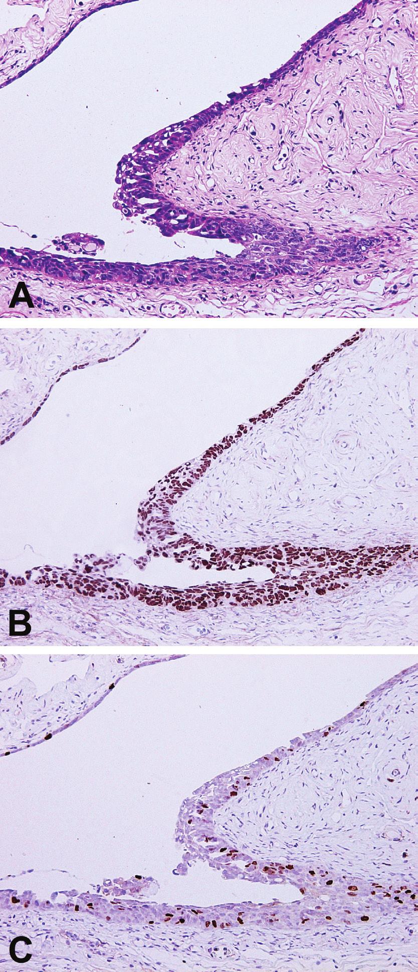 Serózní tubární intraepiteliální karcinom (STIC) na povrchu fimbrií děložní tuby.