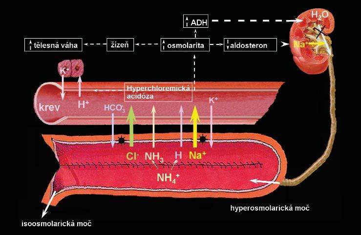 Navrhovaný mechanismus vzniku hyperchloremické acidózy u pacientů s ortotopickou neovezikou ze segmentu kolon. Sliznice kolon aktivně transportuje NaCl z moči do krevního řečiště – následováno pasivním transportem H<sub>2</sub>0 – následně vzniká hyperchloremická acidóza a retence tekutin. Ačkoliv tento mechanismus nebyl ještě zcela objasněn, acidóza je vyvolána také absorpcí chloridu amonného. Otištěno se svolením. ADH – antidiuretický hormon, H<sub>2</sub>0 – voda, Na<sup>+</sup>– sodík, H<sup>+</sup>– vodík, K<sup>+</sup>– draslík, Cl<sup>-</sup> – chlor, HCO<sub>3</sub><sup>-</sup> – hydrogenuhličitan sodný, NH3<sup>-</sup> amoniak, NH4<sup>+</sup>– amonium [34].