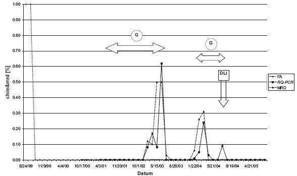 Pacient s chronickou myeloidní leukemií (CML): KC dle FA, zároveň zbytková nemoc (MRD) pomocí detekce fúzního genu bcr/abl pozitivní. Ve všech takových odběrech byl pomocí RQ-PCR retrospektivně potvrzen mikrochimérismus. Obdobný fenomén byl pozorován u dalších 9 CML pacientů. Legenda: G = Glivec, DLI = infuze dárcovských lymfocytů